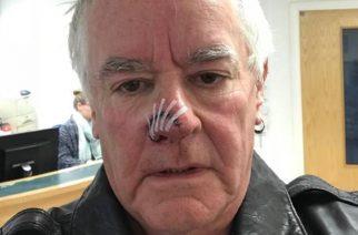 Saxon-rumpali Nigel Glockler joutui koiran puremaksi: sai yli 100 tikkiä nenäänsä