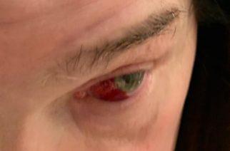 Pimeyden prinssiltä katkesi verisuoni silmästä yskäisyn voimasta: jakoi kuvan verisestä silmästään sosiaalisessa mediassa