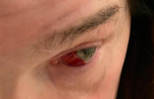 Verisuoni Katkennut Silmästä