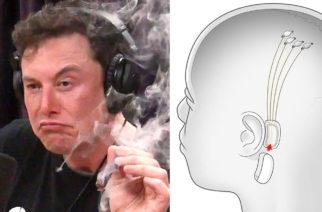 Musiikin kuuntelun tulevaisuus? Elon Musk suunnittelee aivoihin asennettavaa sirua, jolla voi kuunnella myös musiikkia